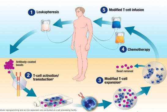 CAR-T. Prima terapia cellulare antitumorale